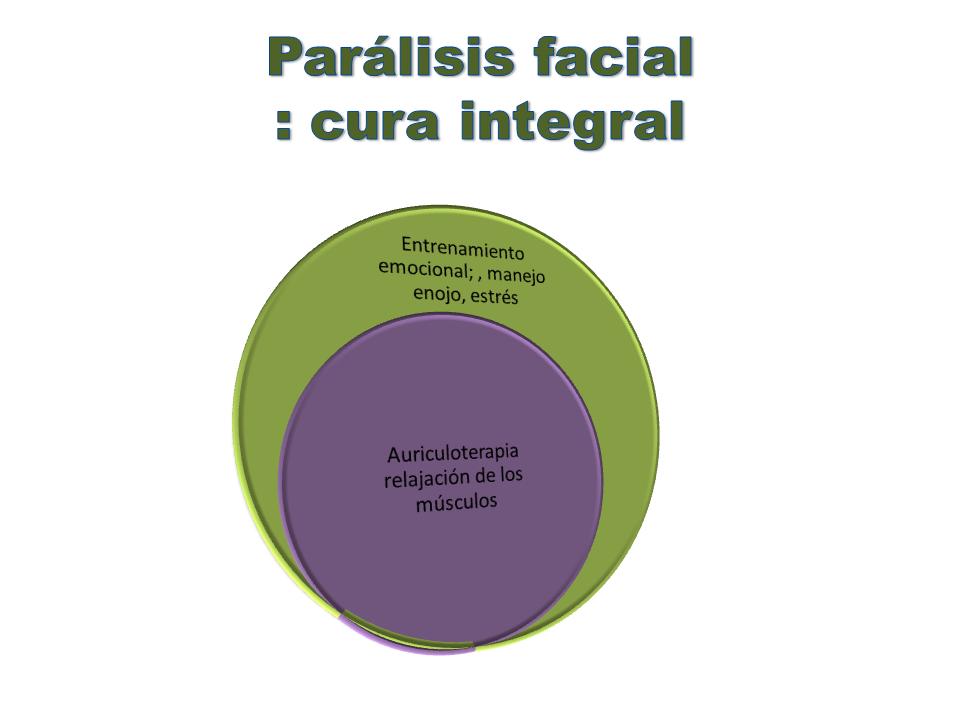 casa del estres facial paralisis